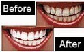 Whiter Teeth Images