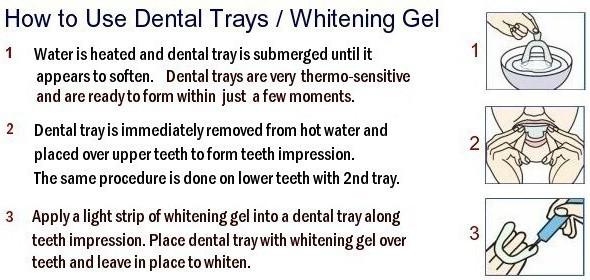 Teeth Whitening Kit 44 Tooth Bleaching Gel Syringes 20ml